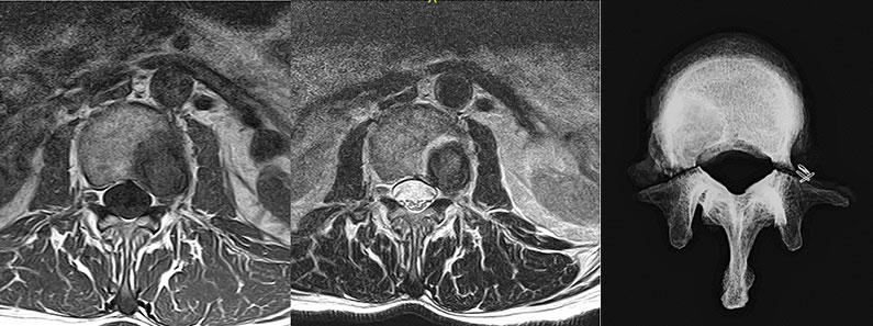 Tratamientos.-Tratamiento-de-los-tumores-de-la-columna