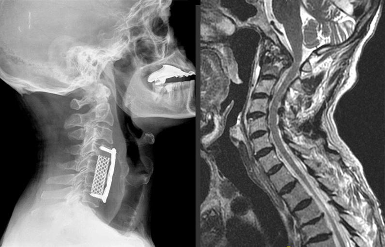 Tratamientos.cirugia-del-canal-estrecho-cervical