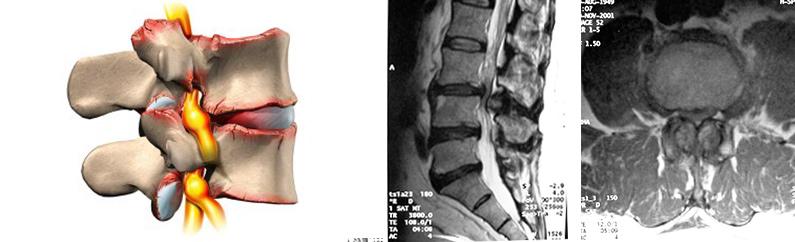 Tratamientos.cirugia-del-canal-estrecho-lumbar