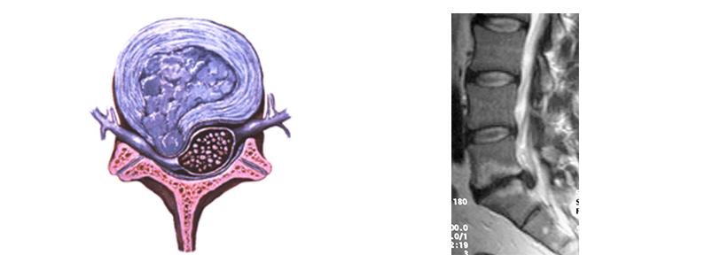 Tratamientos.-cirugía-de-la-hernia-discal-lumbar