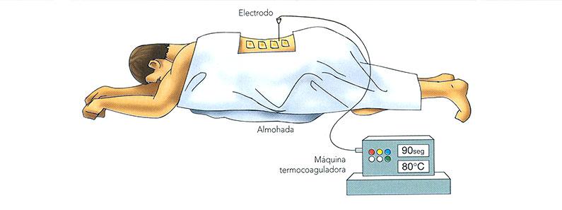 Tratamientos.-rizolisis-o-radiofrecuencia-vertebral